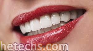 implant tedavisi, implant diş, implant fiyatları