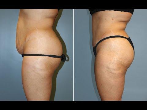 liposuction merkezi çalışanları, liposuction merkezinde kimler çalışır