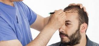saç ekimi doktoru, saç ekimi yaptırma, saç ekimi doktor seçimi
