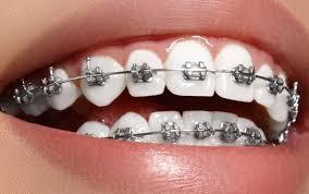 diş teli nasıl takılır, diş teli kimlere uygulanabilir, kimler diş teli taktırabilir