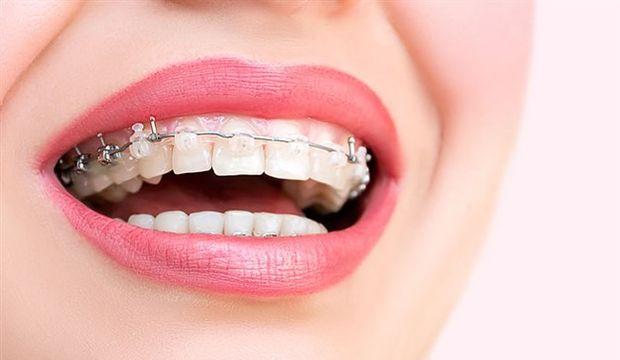 diş teli, diş teli fiyatları, diş teli uygulamaları