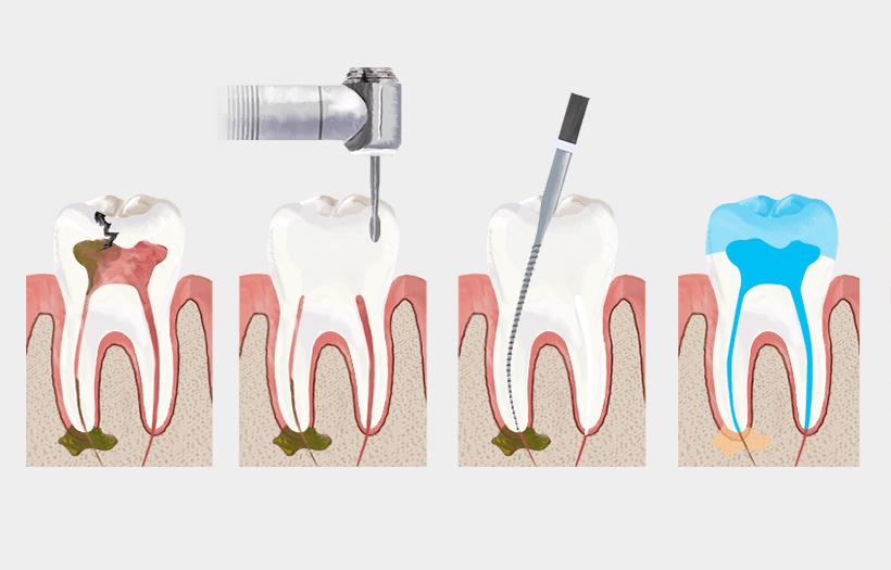 kanal tedavisi, kanal tedavisi nasıl yapılır, kanal tedavisi yapımı ve faydaları